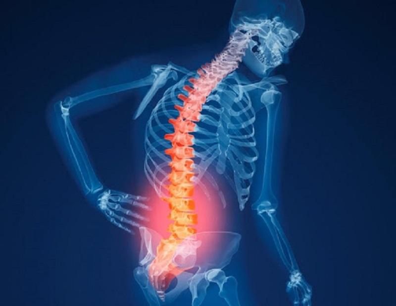 Nueva opción universitaria contra la osteoporosis